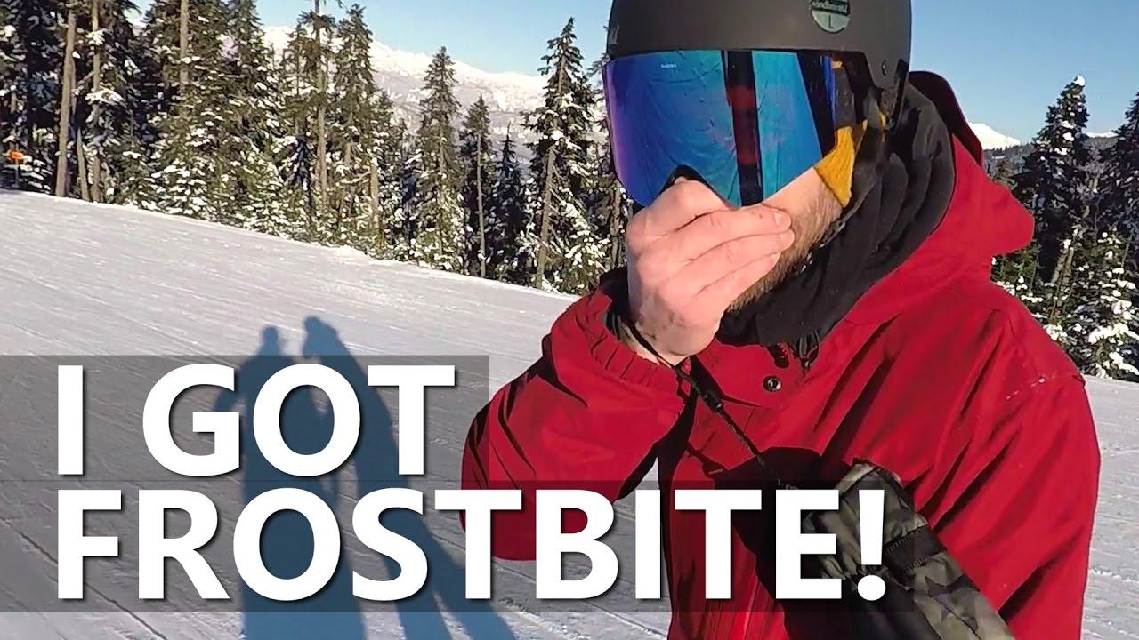I Got FROSTBITE Snowboarding in Whistler